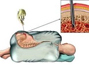 la medula osea