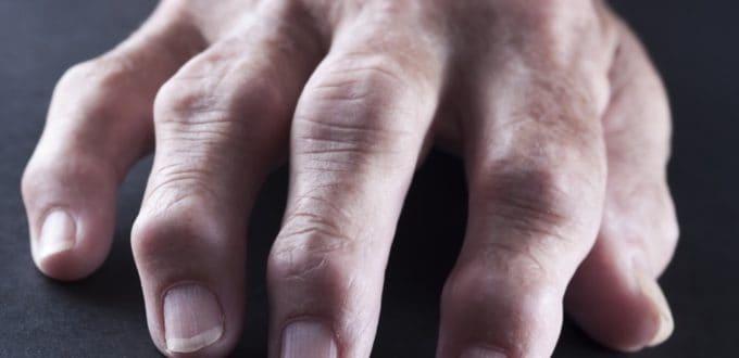 recomendaciones-cuidados-artritis